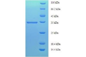 Image no. 1 for Prostaglandin D2 Synthase (PTGDS) (AA 23-190) protein (His-SUMO Tag) (ABIN5710175)