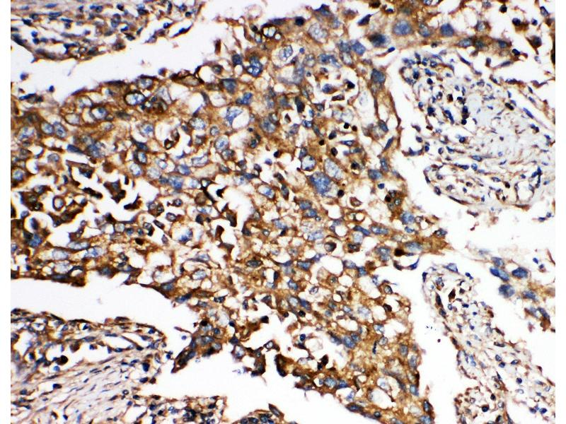Immunohistochemistry (IHC) image for anti-SMAD, Mothers Against DPP Homolog 5 (SMAD5) (AA 248-267), (Middle Region) antibody (ABIN3043980)