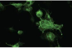 Image no. 3 for anti-Red Fluorescent Protein (RFP) antibody (ABIN6254205)