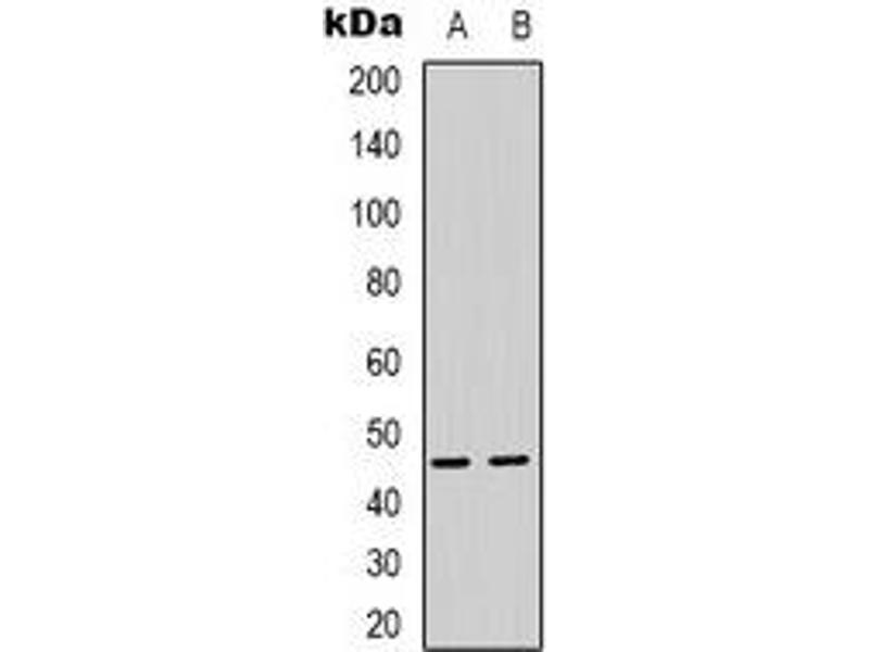 Western Blotting (WB) image for anti-Proteasome (Prosome, Macropain) 26S Subunit, Non-ATPase, 11 (PSMD11) antibody (ABIN2801313)