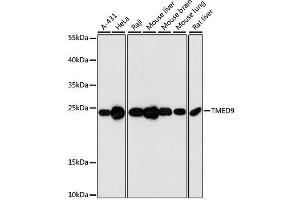 Image no. 1 for anti-Transmembrane Emp24 Protein Transport Domain Containing 9 (TMED9) antibody (ABIN6149250)