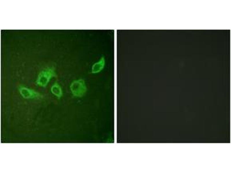 Immunofluorescence (IF) image for anti-V-Crk Sarcoma Virus CT10 Oncogene Homolog (Avian) (CRK) (AA 187-236), (pTyr221) antibody (ABIN1531222)