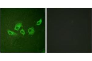 Immunofluorescence (IF) image for anti-Crk antibody (V-Crk Sarcoma Virus CT10 Oncogene Homolog (Avian)) (pTyr221) (ABIN1531222)