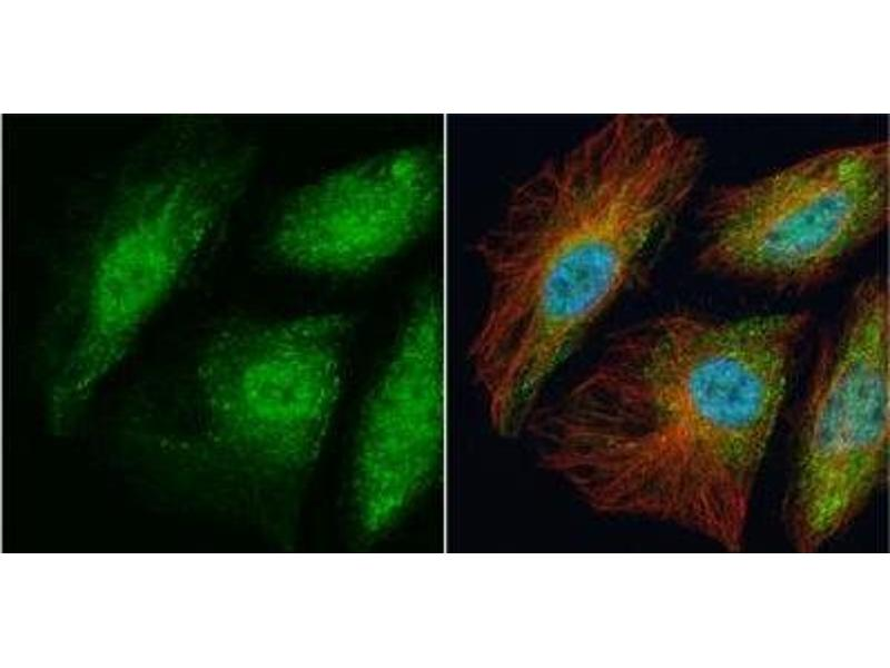 Immunofluorescence (IF) image for anti-TRAF6 antibody (TNF Receptor-Associated Factor 6) (Center) (ABIN443234)