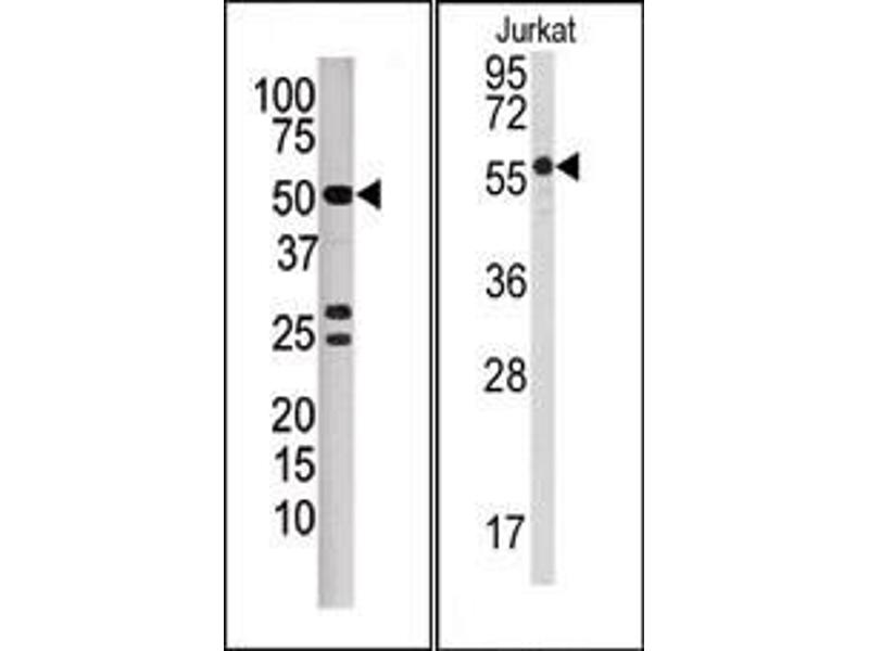 image for anti-PPP3CB Antikörper (Protein Phosphatase 3, Catalytic Subunit, beta Isozyme) (N-Term) (ABIN360810)