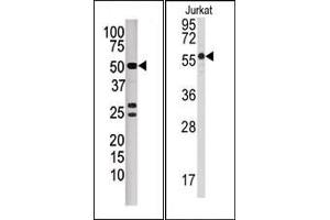 image for anti-Protein Phosphatase 3, Catalytic Subunit, beta Isozyme (PPP3CB) (N-Term) antibody (ABIN360810)