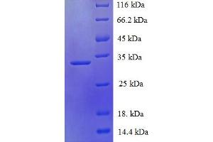 Image no. 1 for PDZ Domain Containing 11 (PDZD11) (AA 1-140), (full length) protein (His-SUMO Tag) (ABIN5711387)