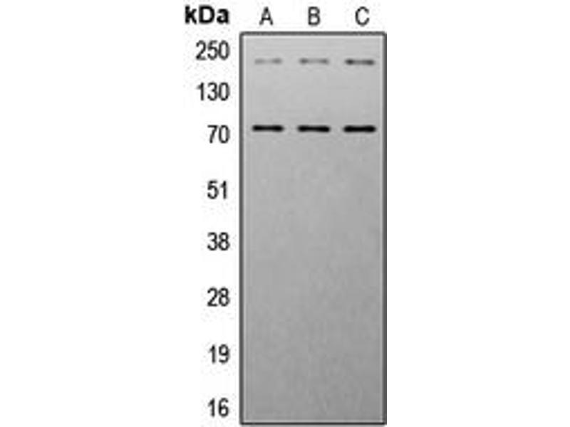 Western Blotting (WB) image for anti-Insulin-Like Growth Factor 1 Receptor (IGF1R) (C-Term), (pTyr1161) antibody (ABIN2704917)