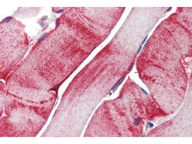 Immunohistochemistry (Paraffin-embedded Sections) (IHC (p)) image for anti-Heat Shock 27kDa Protein 1 (HSPB1) antibody (ABIN462100)