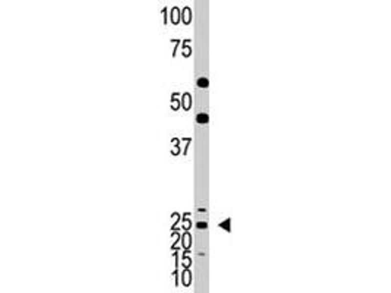 Western Blotting (WB) image for anti-Achaete-Scute Complex Homolog 1 (Drosophila) (ASCL1) antibody (ABIN542874)