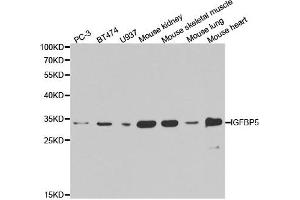 Western Blotting (WB) image for anti-Insulin-Like Growth Factor Binding Protein 5 (IGFBP5) antibody (ABIN1873175)