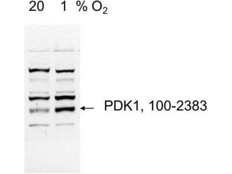Western Blotting (WB) image for anti-3-phosphoinositide Dependent Protein Kinase-1 (PDPK1) (AA 350-436), (C-Term) antibody (ABIN250776)