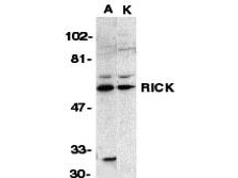 Western Blotting (WB) image for anti-RIPK2 antibody (Receptor-Interacting Serine-threonine Kinase 2) (N-Term) (ABIN2499838)