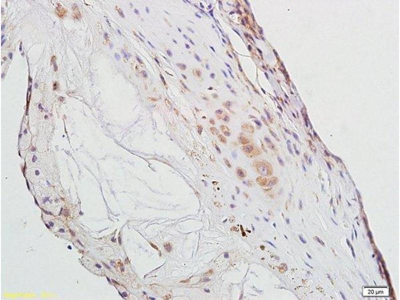 Immunohistochemistry (IHC) image for anti-Peroxisome Proliferator-Activated Receptor gamma (PPARG) (AA 170-220) antibody (ABIN1386283)