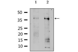 Image no. 1 for anti-Solute Carrier Family 39 (Zinc Transporter), Member 1 (SLC39A1) antibody (ABIN6258566)