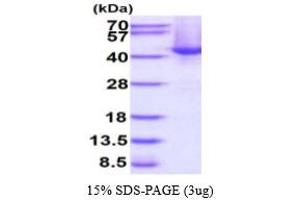 Image no. 1 for Speckle-Type POZ Protein (SPOP-B) (AA 1-374) protein (His tag) (ABIN667901)