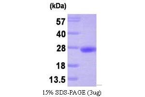 Image no. 1 for Protein Tyrosine Phosphatase Type IVA, Member 3 (PTP4A3) (AA 1-173) protein (His tag) (ABIN666667)