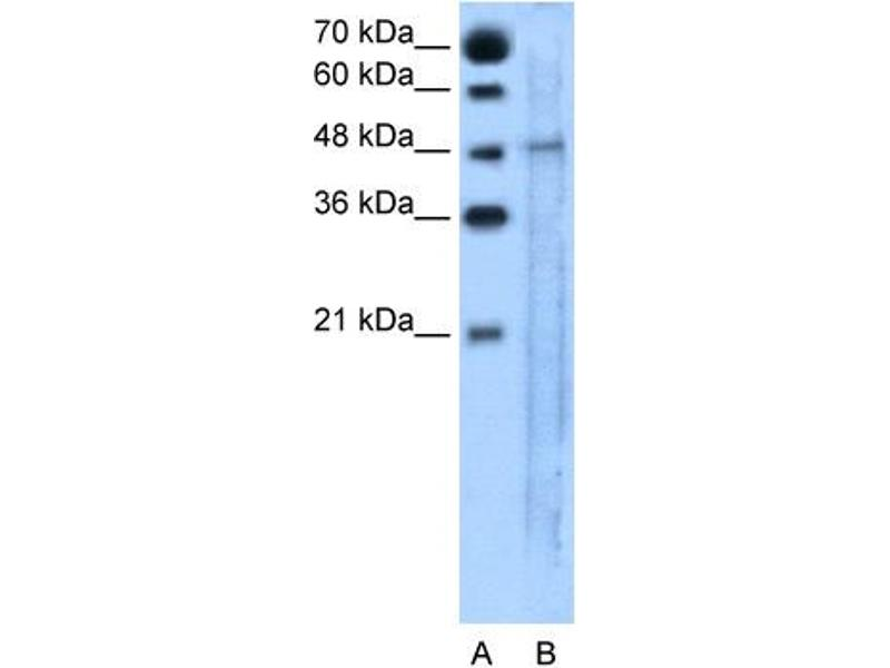 Western Blotting (WB) image for anti-Solute Carrier Family 25, Member 46 (SLC25A46) (N-Term) antibody (ABIN310551)