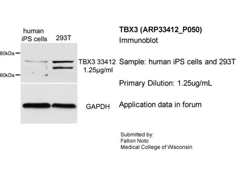 Western Blotting (WB) image for anti-T-Box 3 (TBX3) (Middle Region) antibody (ABIN2777925)