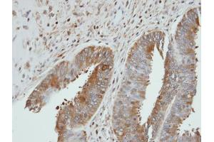 Image no. 1 for anti-UDP-Glucose Pyrophosphorylase 2 (UGP2) (Center) antibody (ABIN2855457)