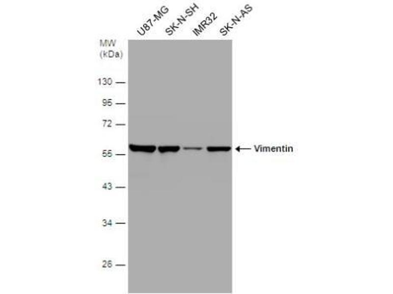 Western Blotting (WB) image for anti-Vimentin (VIM) (Center) antibody (ABIN441334)