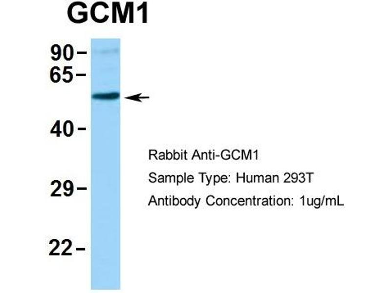 Western Blotting (WB) image for anti-Glial Cells Missing Homolog 1 (Drosophila) (GCM1) (N-Term) antibody (ABIN2792608)