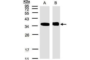Image no. 2 for anti-N-Myc (And STAT) Interactor (NMI) (Center) antibody (ABIN2855502)