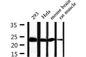 Image no. 2 for anti-Tumor Protein, Translationally-Controlled 1 (TPT1) antibody (ABIN6265698)