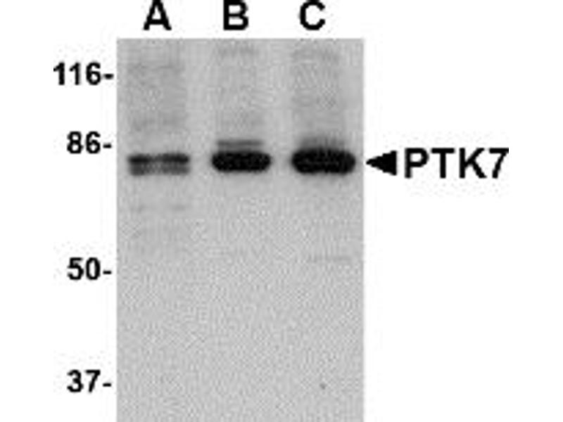Western Blotting (WB) image for anti-PTK7 Protein tyrosine Kinase 7 (PTK7) (N-Term) antibody (ABIN1031528)