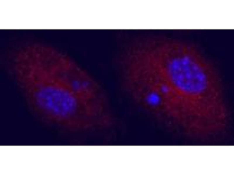 image for anti-CD83 antibody (CD83) (ABIN958074)