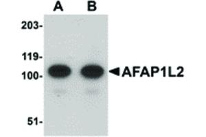 Image no. 1 for anti-Actin Filament Associated Protein 1-Like 2 (AFAP1L2) (C-Term) antibody (ABIN6656967)