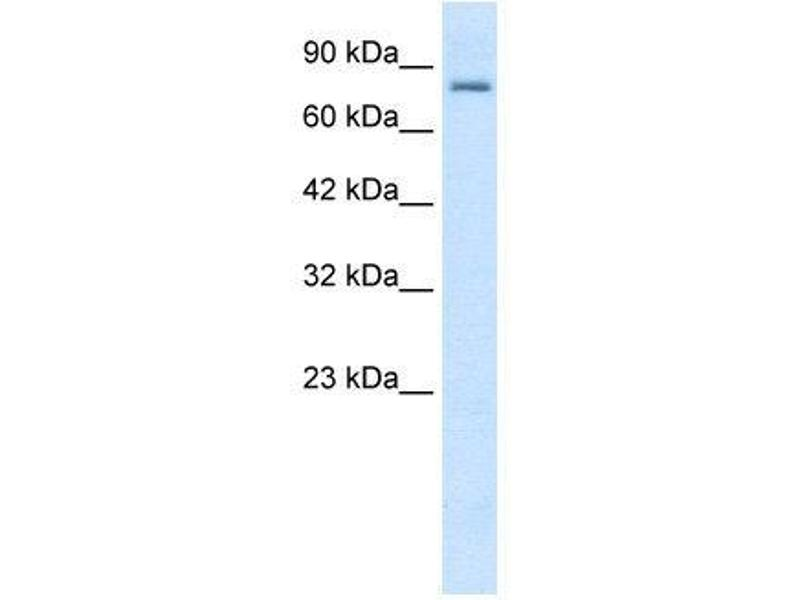 Western Blotting (WB) image for anti-Small Conductance Calcium-Activated Potassium Channel Protein 3 (KCNN3) (C-Term) antibody (ABIN183133)