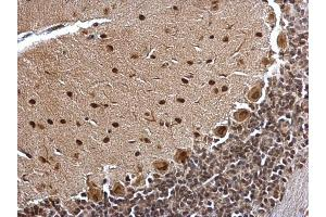 Image no. 5 for anti-B-Cell CLL/lymphoma 7A (BCL7A) (C-Term) antibody (ABIN2854648)