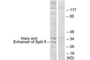 Image no. 1 for anti-Hairy and Enhancer of Split 6 (HES6) (AA 1-50) antibody (ABIN1534068)
