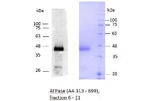 Image no. 1 for ATPase, Ca++ Transporting, Type 2C, Member 1 (ATP2C1) (AA 313-699) protein (His tag) (ABIN3089348)