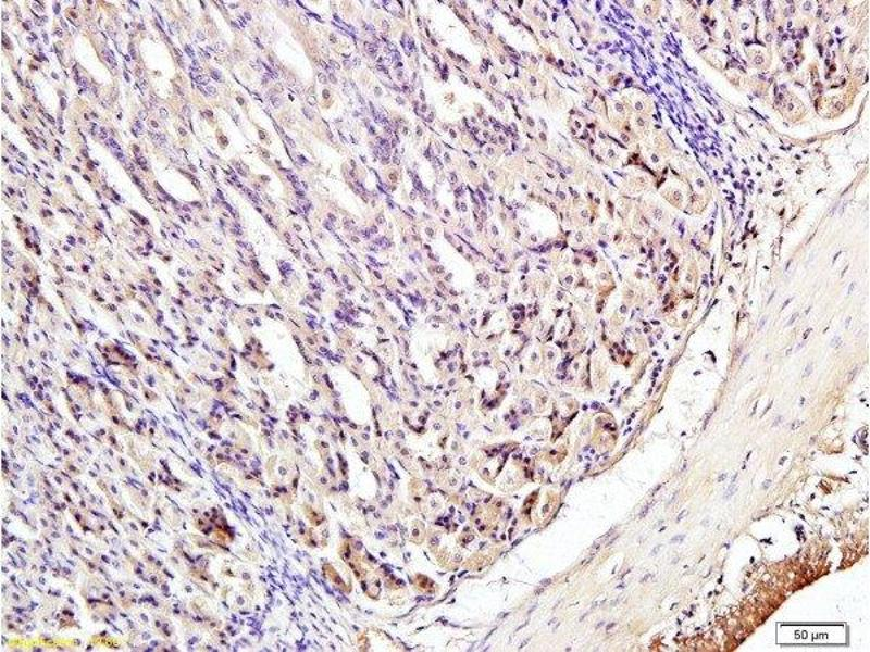 Immunohistochemistry (Paraffin-embedded Sections) (IHC (p)) image for anti-Interferon Regulatory Factor 3 (IRF3) (AA 375-425), (pSer396) antibody (ABIN742688)