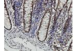 Immunostaining (ISt) image for anti-Signal Transducer and Activator of Transcription 6, Interleukin-4 Induced (STAT6) (AA 694-801), (partial) antibody (ABIN563038)