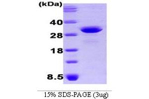 Image no. 1 for Osteoclast Stimulating Factor 1 (OSTF1) (AA 1-217) protein (His tag) (ABIN666884)