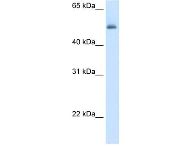 Western Blotting (WB) image for anti-Argininosuccinate Lyase (ASL) (Middle Region) antibody (ABIN2776928)