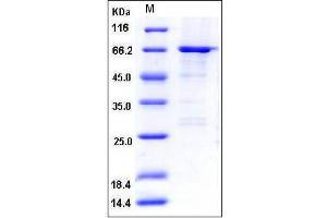 Image no. 1 for Atlastin GTPase 1 (ATL1) (AA 1-447) protein (GST tag) (ABIN2002999)