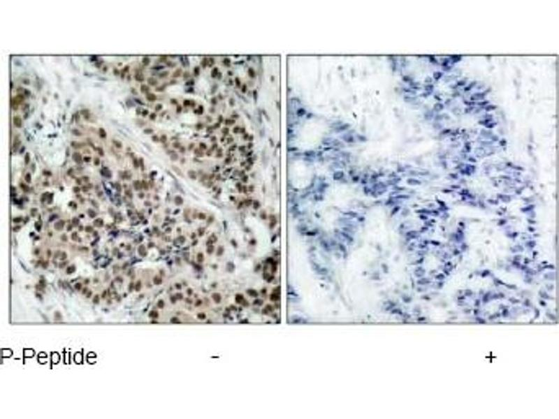 Immunohistochemistry (IHC) image for anti-FOXO1 antibody (Forkhead Box O1) (pSer256) (ABIN257291)