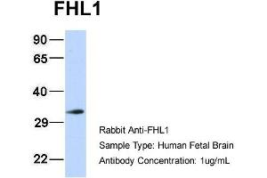 Image no. 3 for anti-Four and A Half LIM Domains 1 (FHL1) (N-Term) antibody (ABIN2777486)