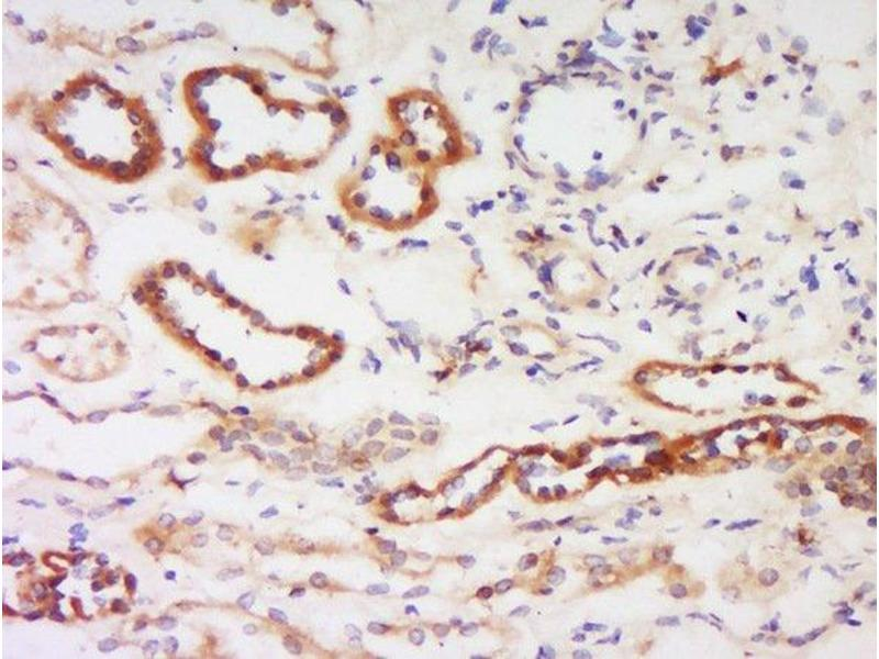 Immunohistochemistry (Paraffin-embedded Sections) (IHC (p)) image for anti-Protein Kinase C, beta (PRKCB) (AA 620-673) antibody (ABIN727010)