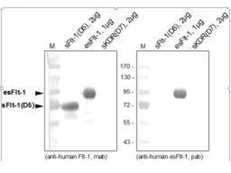Western Blotting (WB) image for anti-FLT1 antibody (Fms-Related tyrosine Kinase 1 (Vascular Endothelial Growth Factor/vascular Permeability Factor Receptor)) (ABIN449639)