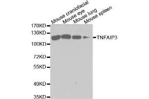Western Blotting (WB) image for anti-Tumor Necrosis Factor, alpha-Induced Protein 3 (TNFAIP3) antibody (ABIN3022985)