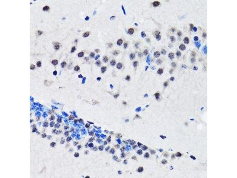 Immunohistochemistry (Paraffin-embedded Sections) (IHC (p)) image for anti-RuvB-Like 2 (E. Coli) (RUVBL2) antibody (ABIN6147323)