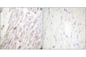 Image no. 2 for anti-erythrocyte Membrane Protein Band 4.9 (Dematin) (EPB49) (AA 356-405), (pSer403) antibody (ABIN1531580)