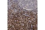 Immunohistochemistry (Paraffin-embedded Sections) (IHC (p)) image for anti-LEF1 antibody (Lymphoid Enhancer-Binding Factor 1) (ABIN4330626)