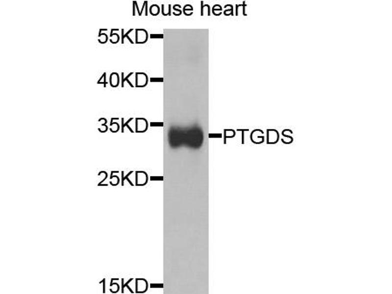 Image no. 1 for anti-Prostaglandin D2 Synthase (PTGDS) antibody (ABIN6568963)