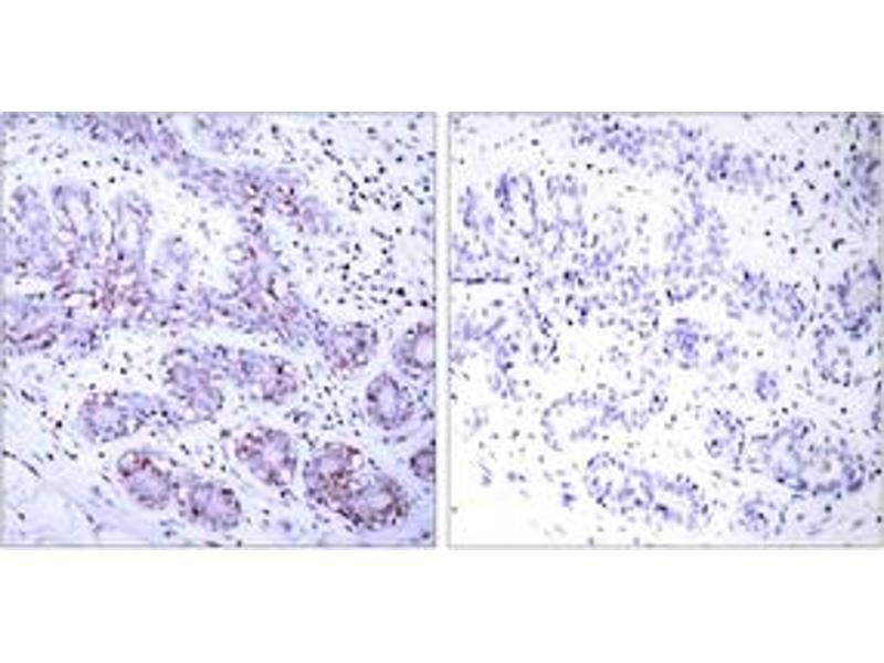 Immunohistochemistry (IHC) image for anti-Signal Transducer and Activator of Transcription 4 (STAT4) (AA 660-709) antibody (ABIN1533011)